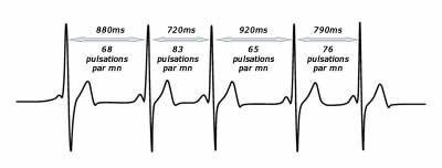 Cohérence cardiaque Haute-Garonne